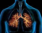 Lung cells produced from iPS cells