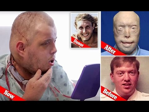 Face transplant in a firefighter By far the most extensive performed successfully