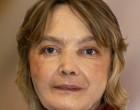 Muere la mujer que recibió el primer trasplante de cara del mundo