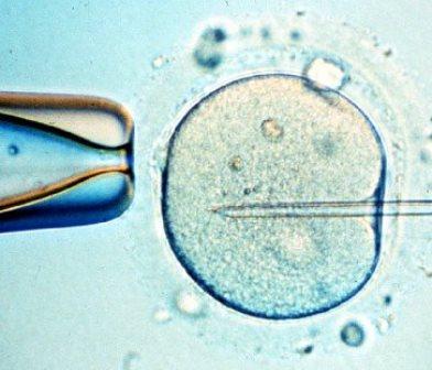 Entre los datos que surgen de este estudio , llama la atención que la mayoría de las mujeres que acuden a la fecundación in vitro hoy tienen más de 40 años.