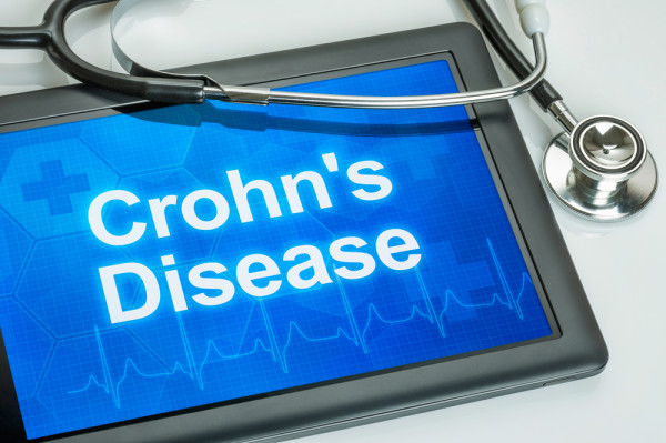 The Lancet comment that it is the start of a new era in Crohn's disease treatment using cell therapy, with adult stem cells.