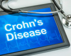 New breakthrough in the treatment of Crohn's disease using cell therapy