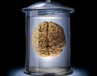 "Se producen ""mini cerebros"" a partir de células madre embrionarias"