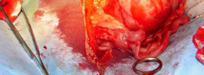 Donación de órganos de eutanasiados en Bélgica