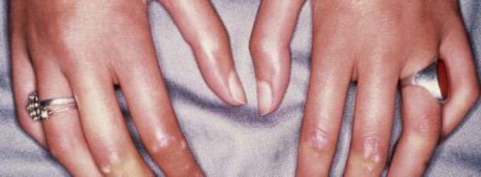 Uso de células madre adultas para tratar la esclerodermia