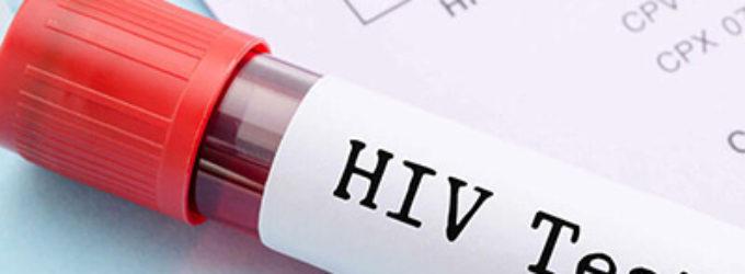 El sida se convierte en una enfermedad crónica