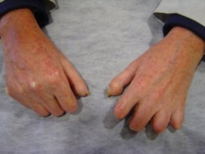 Eficacia de las células madre adultas en el tratamiento de la esclerosis sistémica