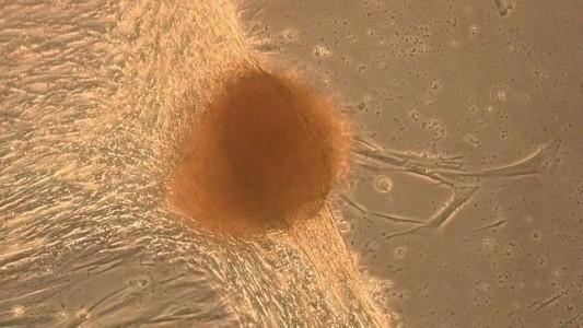 Formación de tejido hepático a partir de células iPS