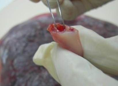 Síndrome en pacientes que han recibido un trasplante de cordón umbilical.