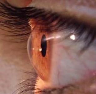 Células iPs obtenida de cordón umbilical recuperan tejido retiniano