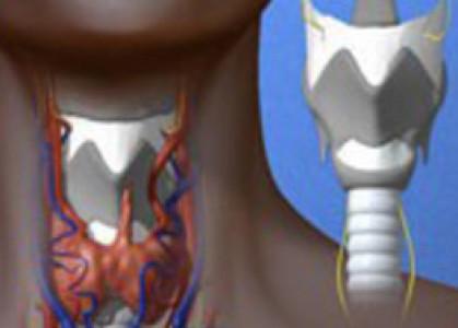 Valoración clínica de cinco años de trasplante de tráquea bioartificial