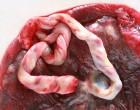 Número de muestras de sangre de cordón umbilical almacenadas en España