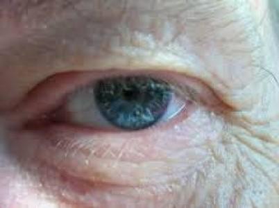 Uso de células embrionarias para tratar enfermedades oculares