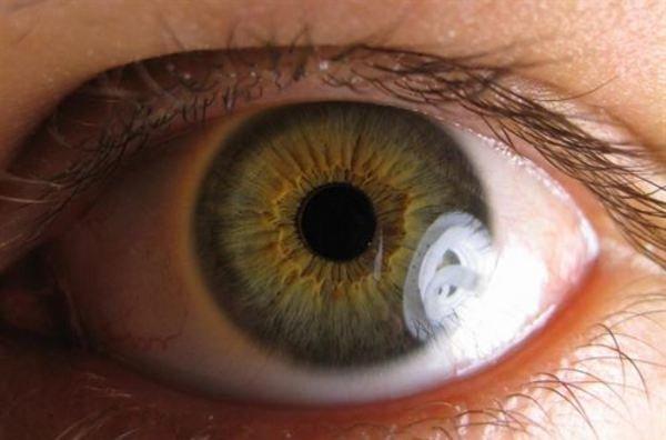 Células iPs para regenerar tejido retiniano grandes avances en los cultivos queda aún un largo camino para ser aplicada como terapia regenerativa clínica