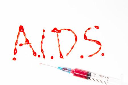 Sida Africa prevención y tratamiento, no se llega a los mínimos