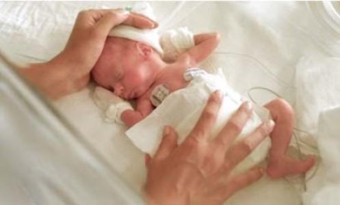 Niños extremadamente prematuros – evaluación de su supervivencia