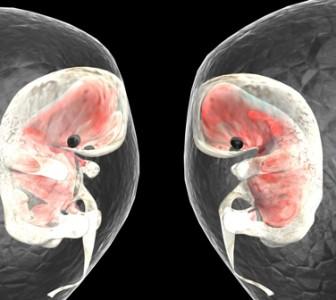 Los embarazos múltiples aumentan los problemas obstétricos
