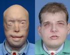 Trasplante de cara de bombero norteamericano. Valoración ética