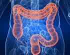 Terapia celular y enfermedad de Crohn