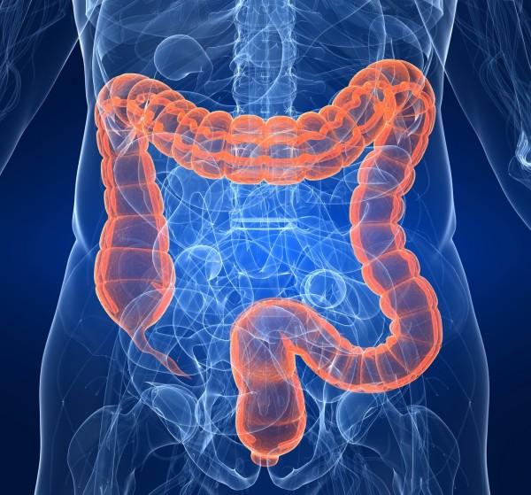 No siempre la terapia celular es útil para el tratamiento de algunas enfermedades. Ahora se publica un estudio en relación con la enfermedad de Crohn, una enfermedad intestinal de larga duración
