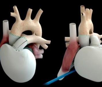 Corazones artificiales. Últimos resultados de estos trasplantes