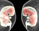 Embarazos de gemelos monocoriómicos se dan en un 7.2% tras fecundación in vitro