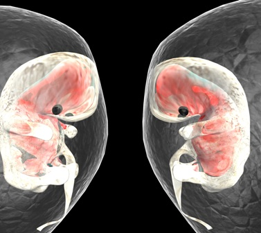 Embarazos de gemelos monocoriómicos se dan en un 7.2% tras fecundación in vitro. Este tipo de embriones tiene un mayor riesgo por lo cual debe ser advertido especialmente prematuridad y bajo peso