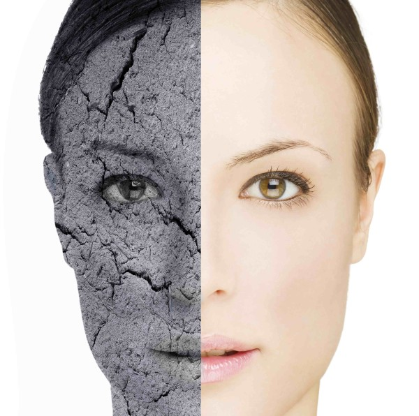 Posible producción de piel a partir de células iPS para el tratamiento de pacientes con lesiones cutáneas, especialmente quemados