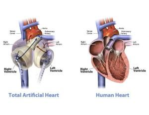 Un-corazon-artificial-que-supera-al-AbioCor