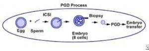 preimplantation+genetic+diagnosis