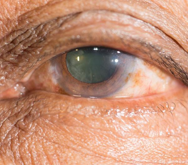 Enfermedades de la retina. Un grupo de investigadores presenta unas interesantes experiencias en las que a partir de células IPS producen tejido de retina.