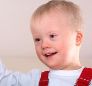 Niños con síndrome de down, también nacen en Islandia