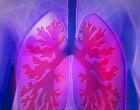 Se consigue producir organoides pulmonares