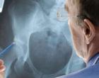 Los implantes médicos siguen dando problemas