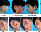 Se producen orejas 3D en China y se implantan en 5 niños