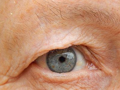 ¿Se puede tratar con terapia celular la degeneración macular de la retina asociada a la edad?