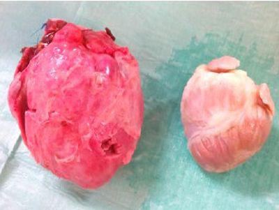 Se trasplantan corazones de cerdo genéticamente modificados a monos