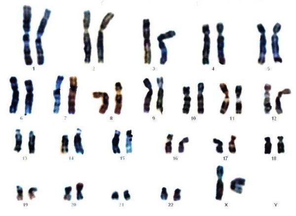 ¿Contribuyen en la salud los test genéticos?