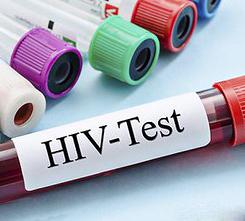 Se encuentra un segundo paciente portador del VIH que se cura espontáneamente