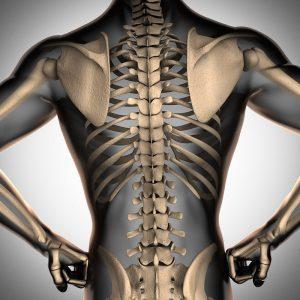 Las lesiones de la médula espinal se pueden tratar con células mesenquimales autólogas de medula ósea